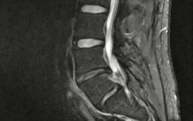 My deffective lower lumbar